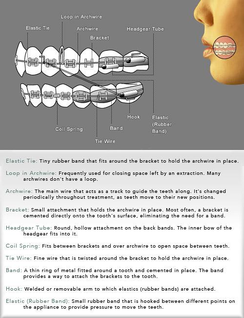 braces diagram